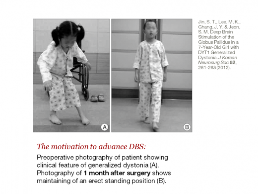 7-year-old standing erect after deep brain stimulation